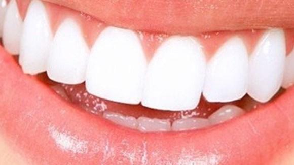Parodontite e diabete – L'impegno della SIdP per combattere questa nuova epidemia