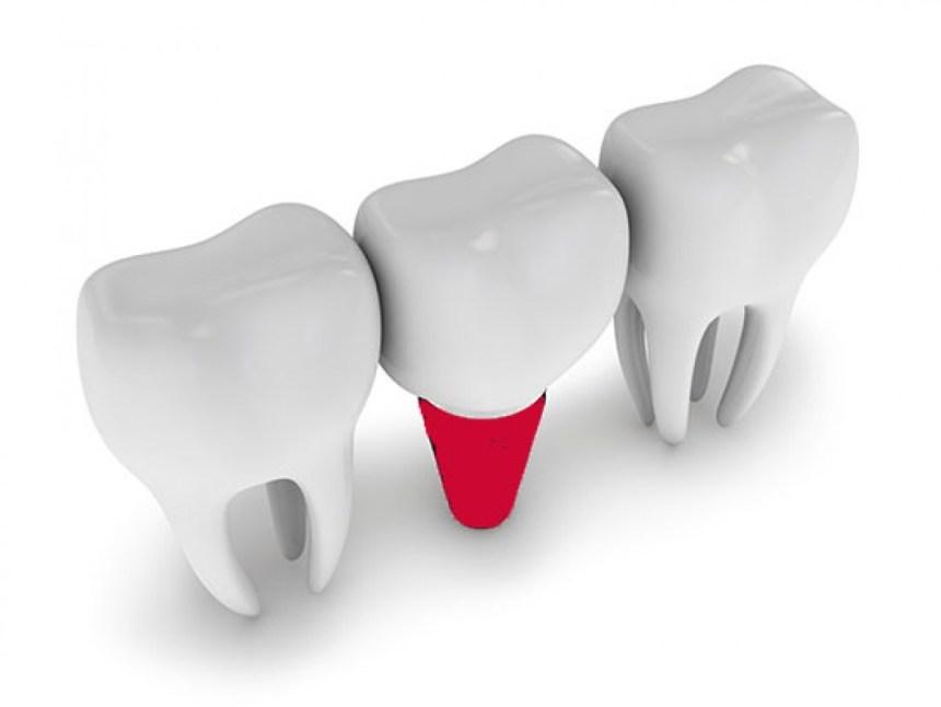 La perimplantite può compromettere lo stato di salute dei denti naturali?