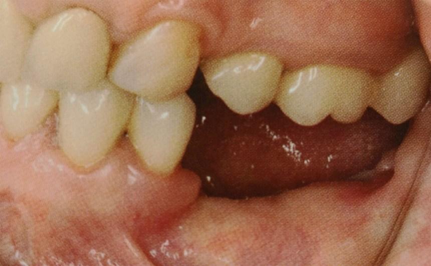 Riabilitazione Arcata inferiore edentula con rigenerazione ossea ed impianti