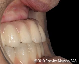 Incremento orizzontale della cresta mascellare in pazienti edentuli attraverso i biomateriali