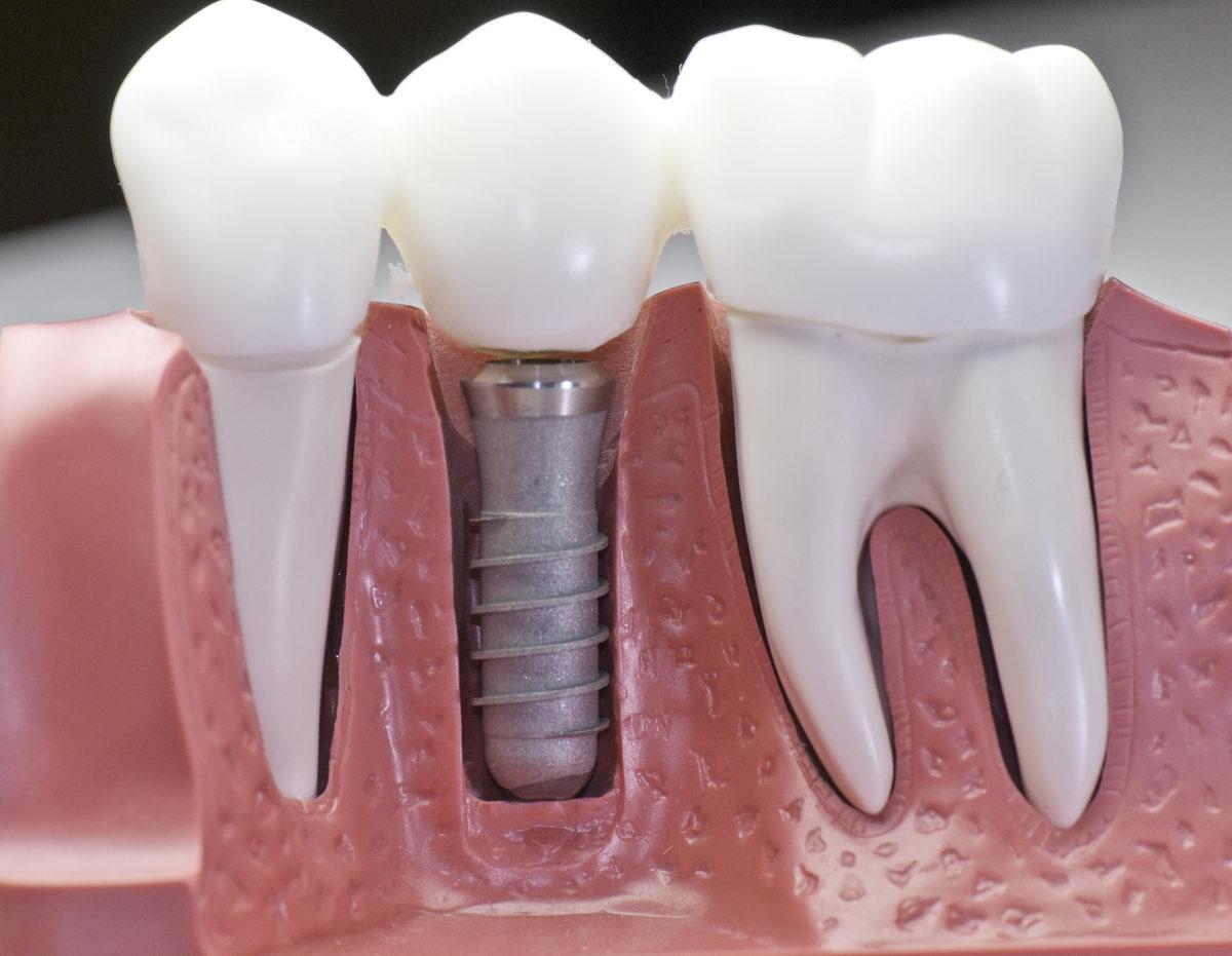 Se pierden más piezas dentales de las que te puedas imaginar