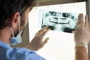 male dentist examines dental x-rays
