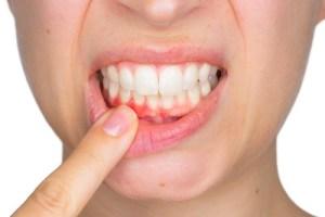 woman indicates gum recession