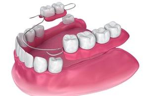 partial dental bridge