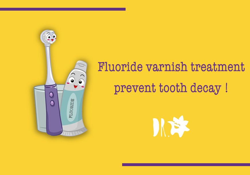 Fluoride Varnish