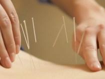 Pessoa que realiza acupuntura tem ser médico?