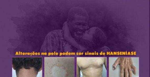 Janeiro Roxo alerta para o combate e prevenção da Hanseníase