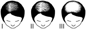 wazifa dua to cure baldness