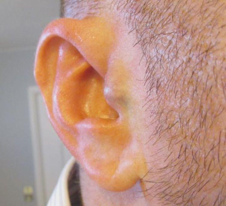 earcl