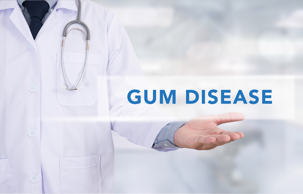Periodontal Diseases Its Causes Symptoms And Cure