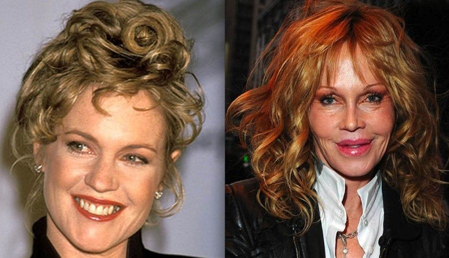 Melanie-Griffith-before-and-after-plastic-surgery-05
