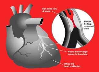 Hoe voorkom je een hartaanval