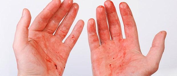 Une Italienne transpire du sang, son cas divise les médecins