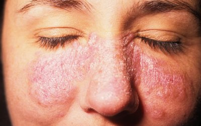 Systemic Lupus Erythematosus (SLE): Signs And Symptoms