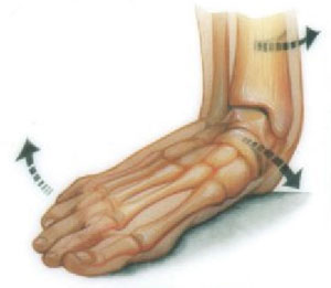 Pes Planus / Flat Feet Treatment | Dynamic Physiotherapy