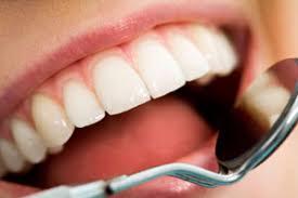dental checkup