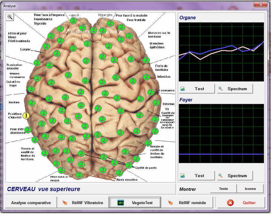 cerveau bilant
