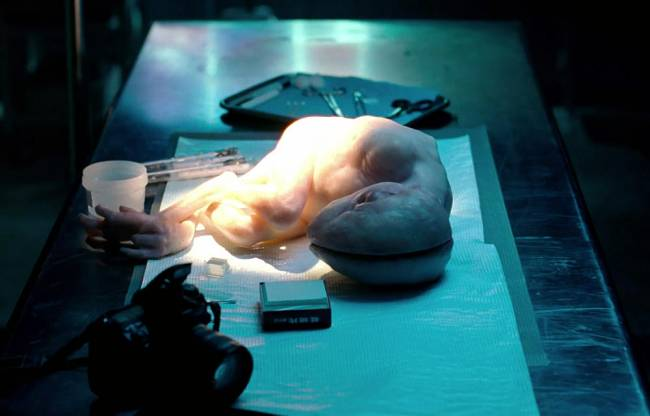 150 υβριδικά έμβρυα ανθρώπου ζώου