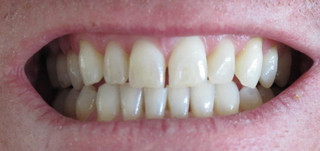 close up of white teeth smiling