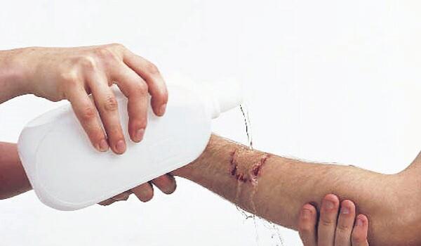 Fucidin First Aid Wound Treatment