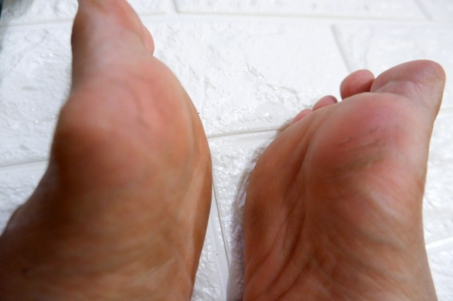 Baby foot peel review Philippines