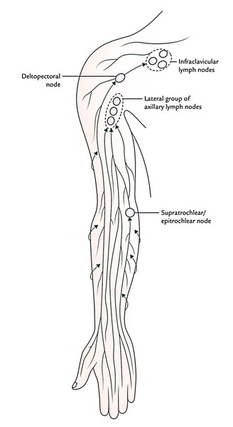 Swelling Node Axillary Causes Lymph