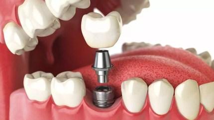 Afbeeldingsresultaat voor tand implantaten