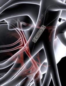 CardioMEMS illustration