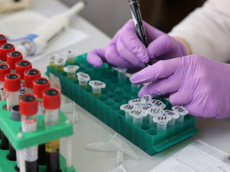 Mizoram: First suspected case of MIS-C detected in 6-year-old boy