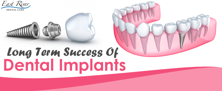 Factors That Contribute To Long – Term Success Of Dental Implants