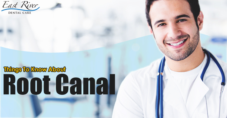Things You Should Know About Root Canal