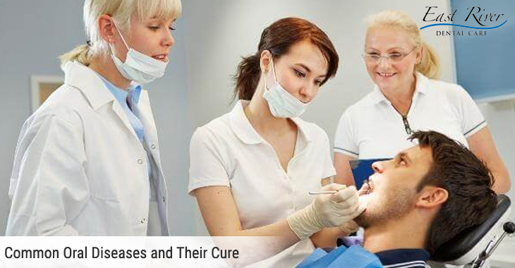 Common Oral Diseases and Their Cure