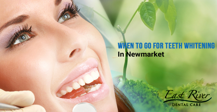 When To Go For Teeth Whitening In Newmarket