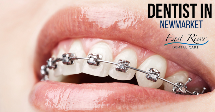 Tips for Reducing Braces Pain