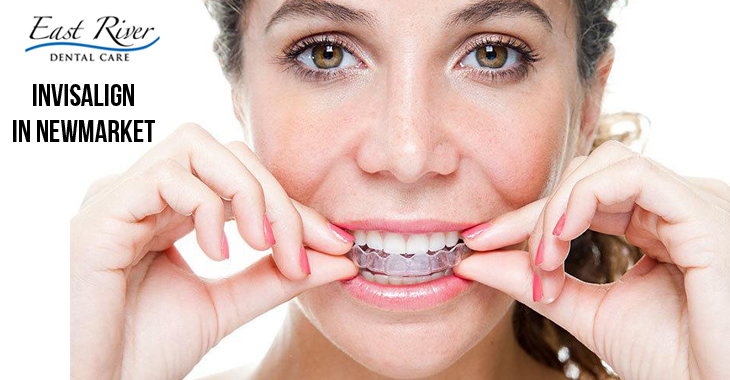 Does Invisalign Require Tooth Extraction Beforehand?