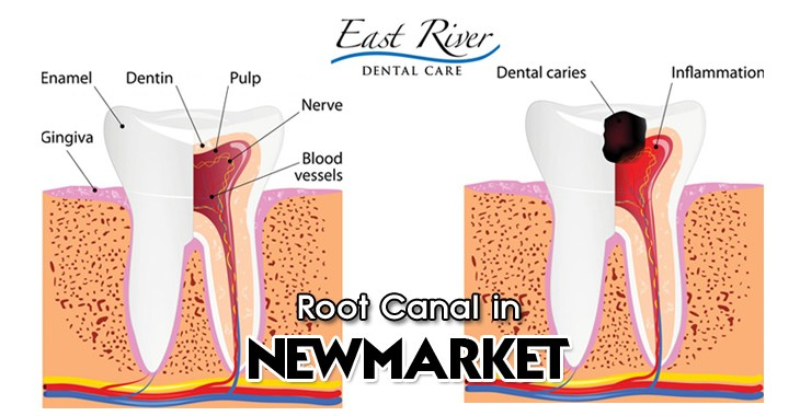 Root canal Newmarket