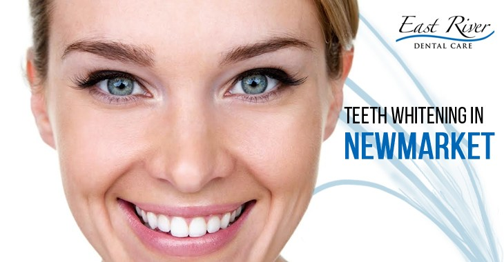 Teeth Whitening Clinic Newmarket