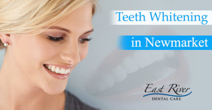 Teeth Whitening in Newmarket