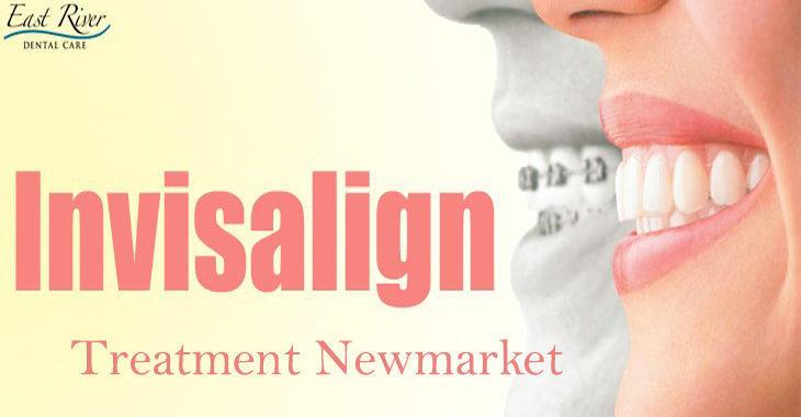 InvisalignTreatment Newmarket
