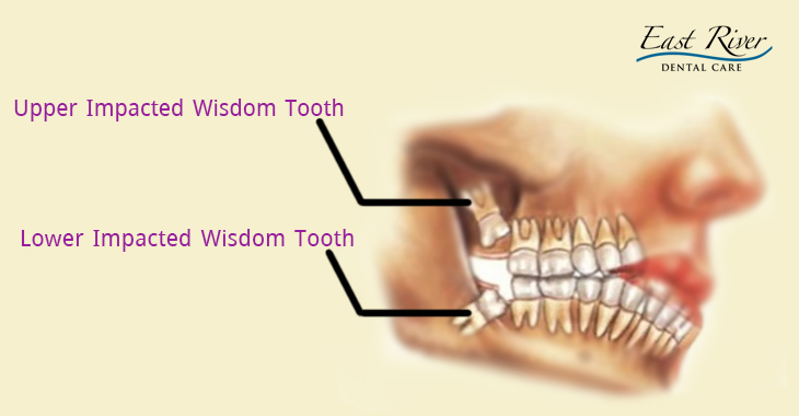 Remove Wisdom Teeth with Dentists in Newmarket