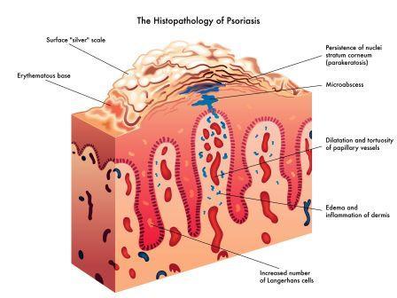 psoriasis - histo-pathology