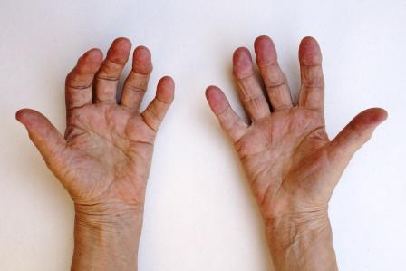 rheumatoid arthritis hand1