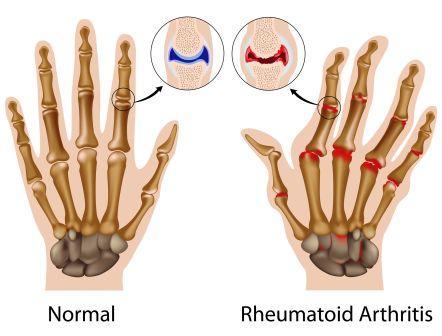 rheumatoid hand