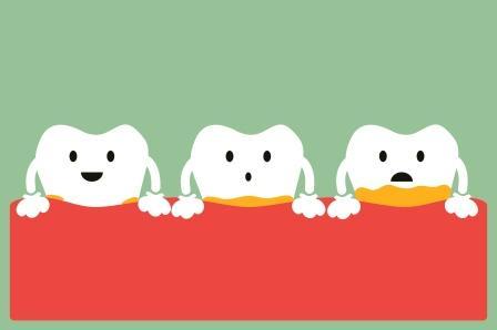dental plaque and tartar development on teeth