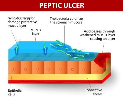 peptic ulcer pathology