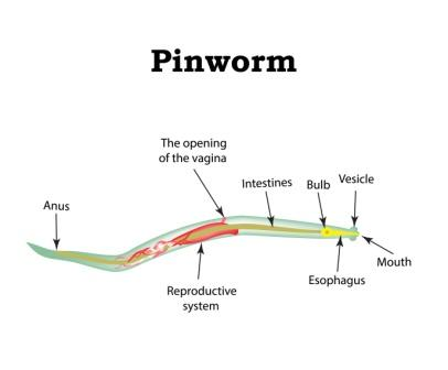 threadworm seatworm