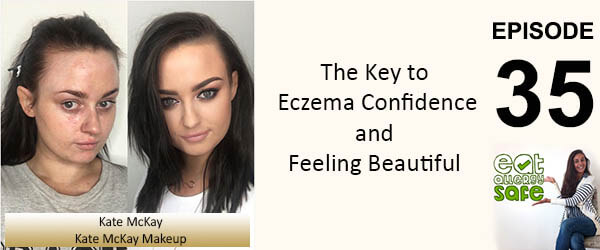 EAS 035: The Key to Eczema Confidence with Kate McKay Professional Make-Up Artist and Eczema Sufferer