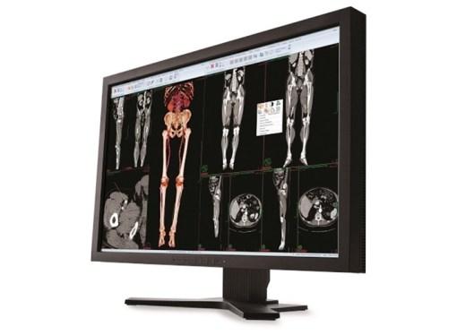 Carestream Health vende su unidad de negocio de TI para el cuidado de la salud a Philips