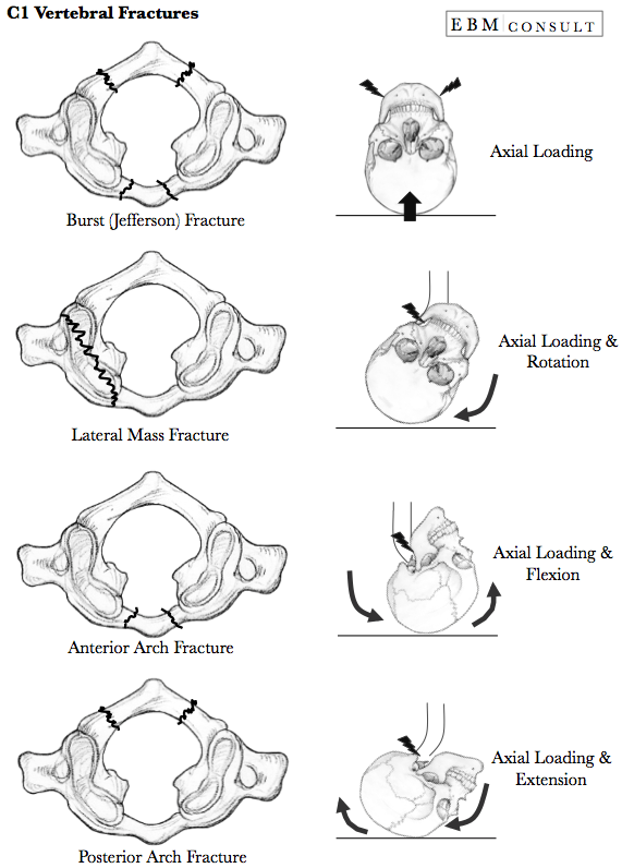 lateral condyle fracture