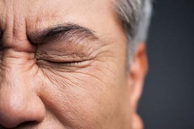 crioterapia estetica viso